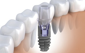 ejjelnappalifogaszat-implant