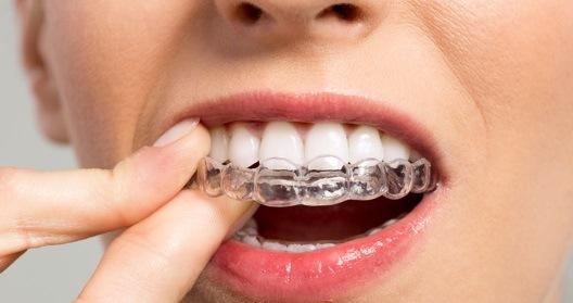fogaszatugyelet-budapest-fogszabalyozas
